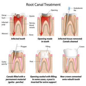 info graphic explaining the stages of an root canal treatment
